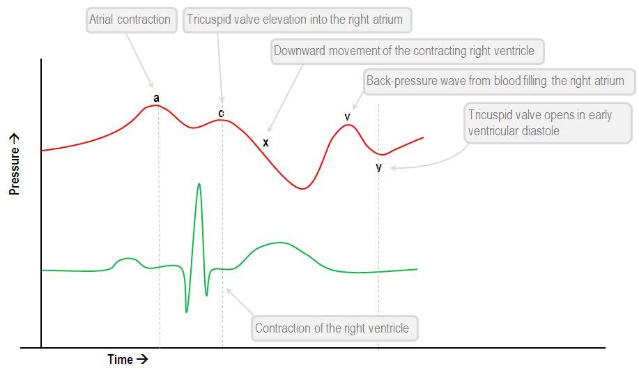 CVP normal waveform