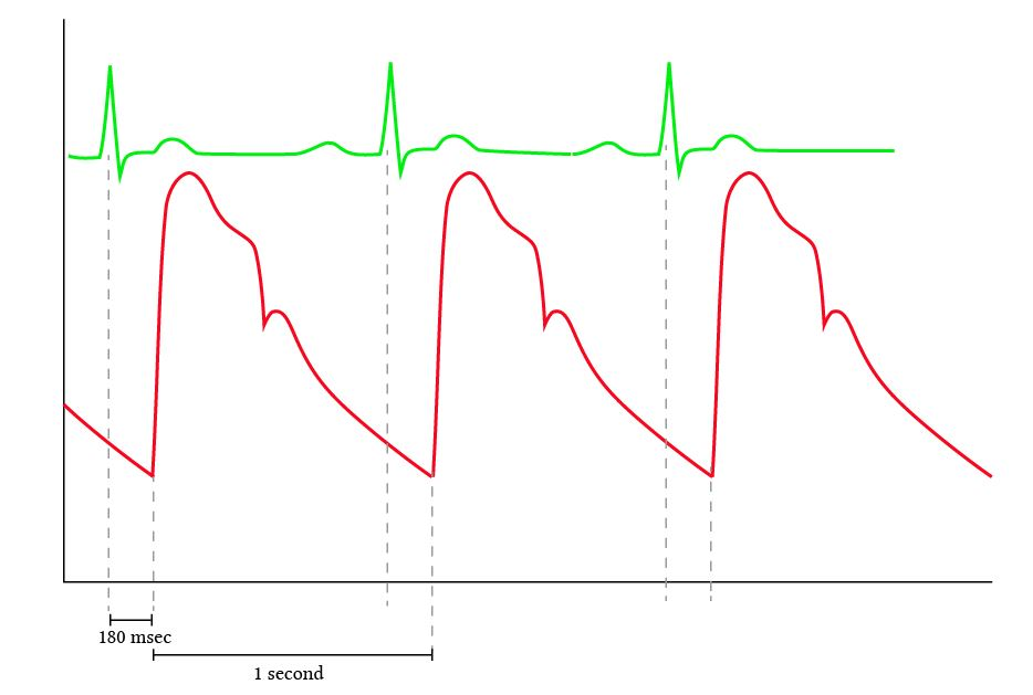 timing of the arterial pulse pressure waveform with the ECG