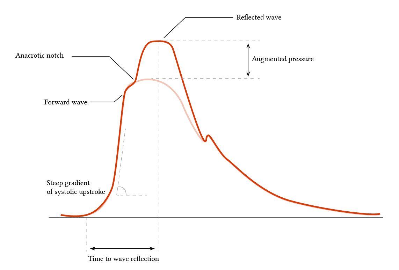 arterial pressure waveform in a hypertensive patient