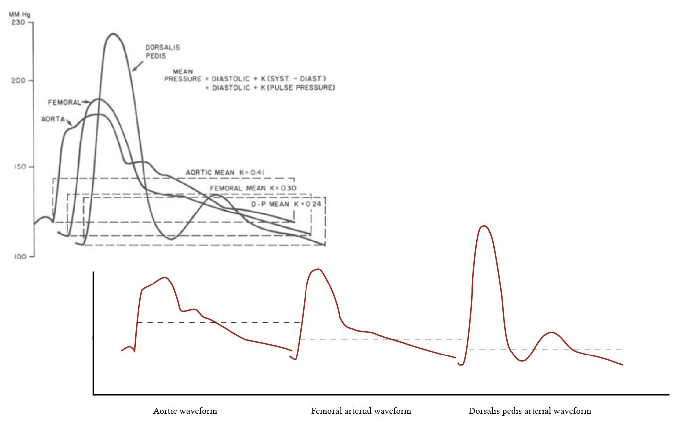 blood pressure waveforms in different vessels modified from Geddes et al.JPG