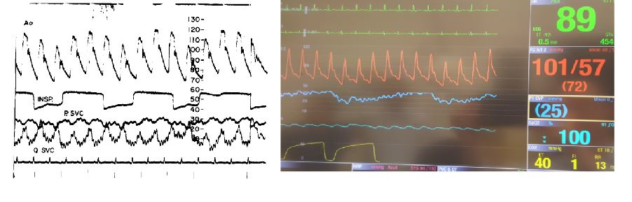 cardiac tamponade waveforms - published and real