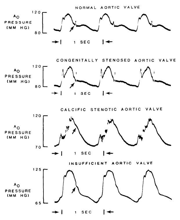 different shapes of the dicrotic notch due to aortic valve pathology