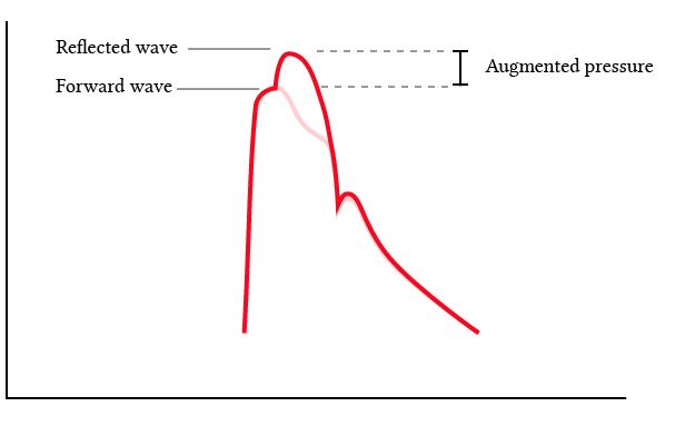 effect of the reflected pressure waves on the shape of the arterial pulse waveform