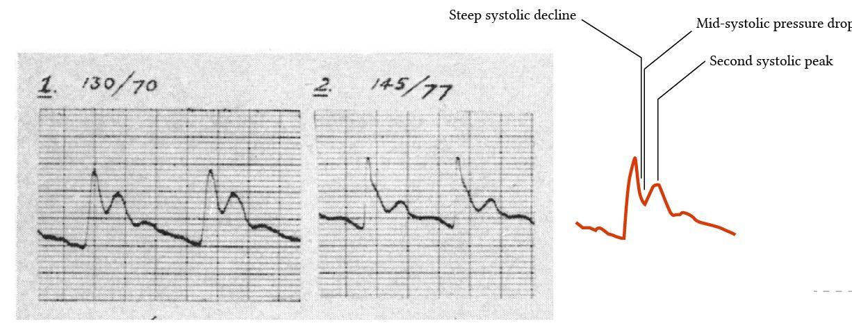 arterial waveform in HOCM