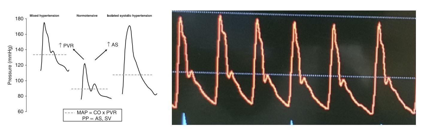 example of an arterial pressure waveform in hypertension