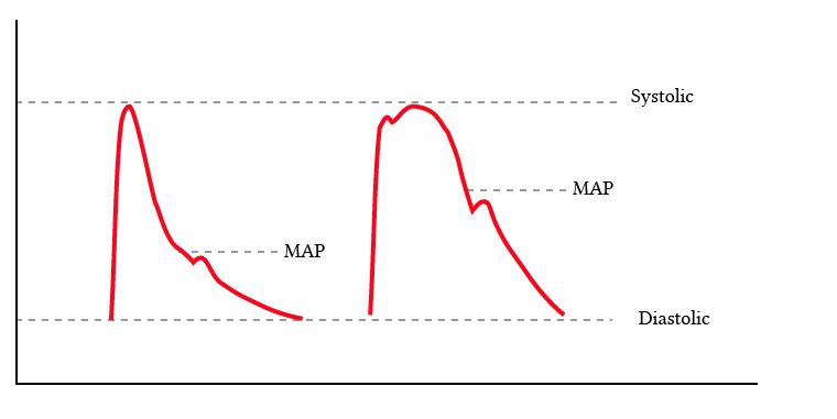 same systolic and diastolic, but different MAP