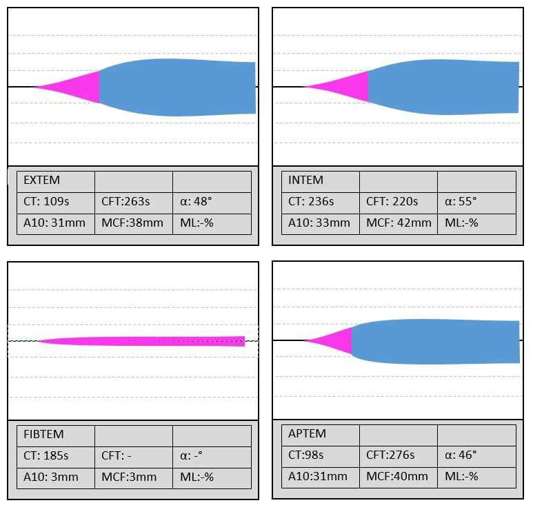 ROTEM graphs with low fibrinogen on the FIBTEM