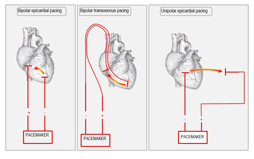 bipolar and unipolar pacing circuits 2 anatomy of the temporary pacemaker circuit deranged physiology