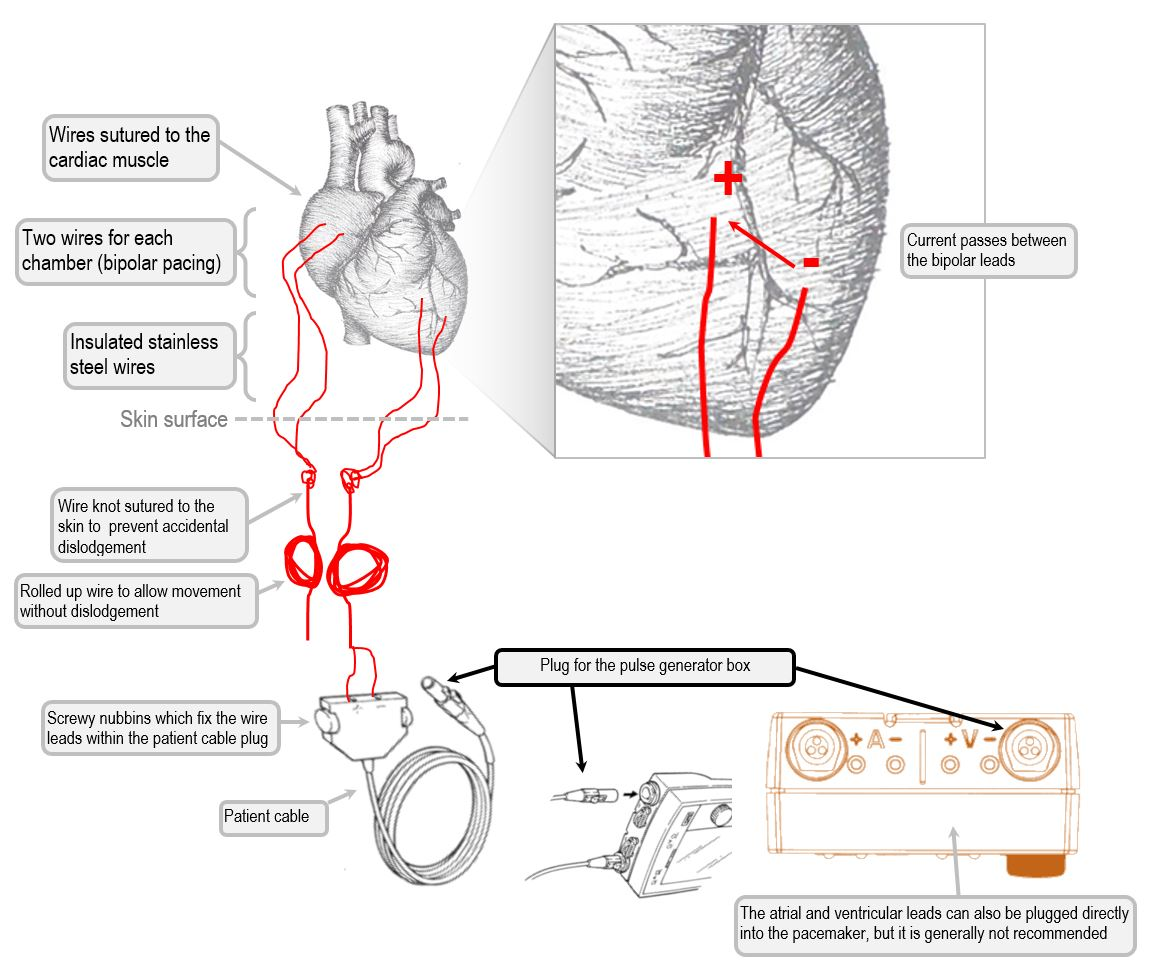 Anatomy Of The Temporary Pacemaker Circuit Deranged Physiology Pace Edwards Wiring Diagram Epicardial Pacing Wires And
