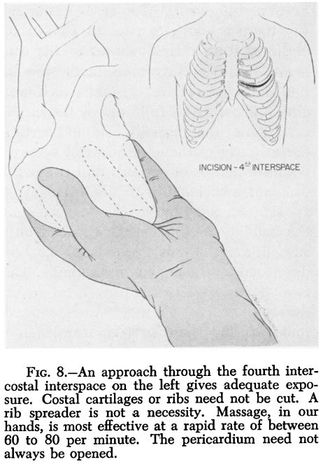 stephenson et al 1953 open cardiac massage