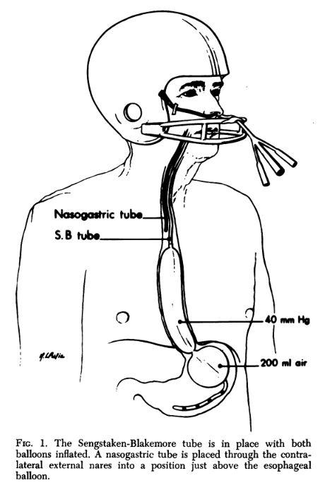 Sengstaken Blakemore Minnesotta And Linton Nachlas Tubes