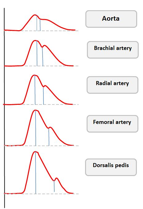 Normal arterial line waveforms - Deranged Physiology