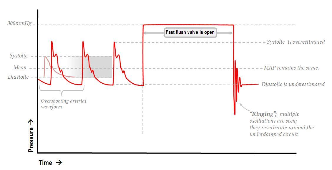 Underdamped arterial line waveform