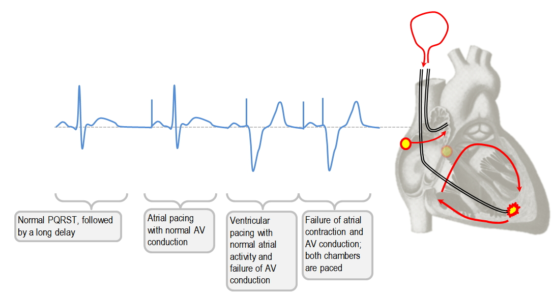 Single vs dual chamber pacing