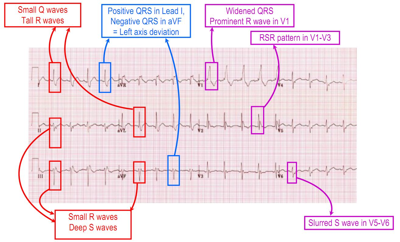 Bifascicular block - RBBB and LPFB