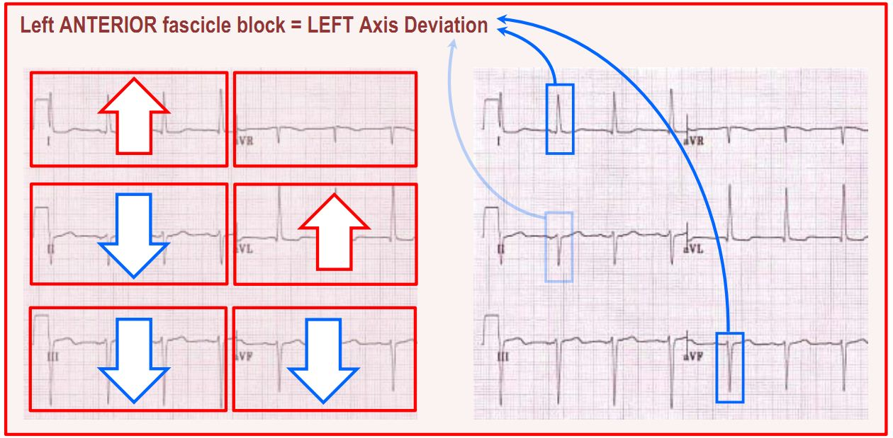 left anterior fascicle block summary