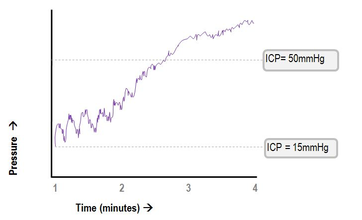 ICP breathing wave flattening with rising ICP