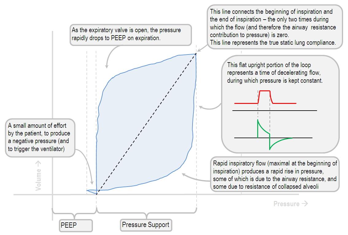 pressure volume loop in SIMV-PRVC