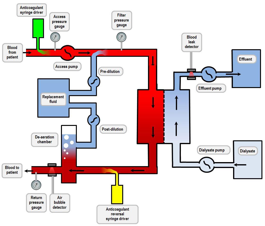 CVVHDF circuit